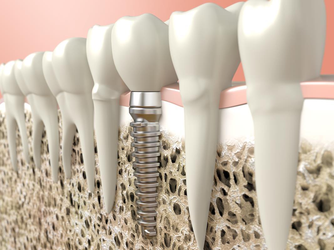 Dental Implants  Kaneohe, HI