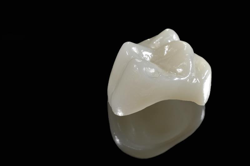 Porcelain Crowns  Kaneohe, HI