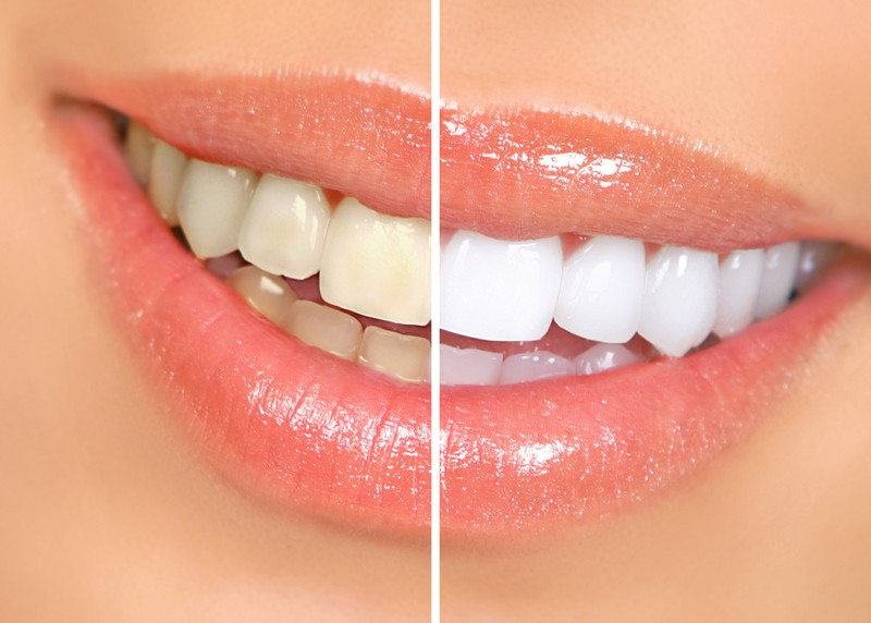 Teeth Whitening  Kaneohe, HI